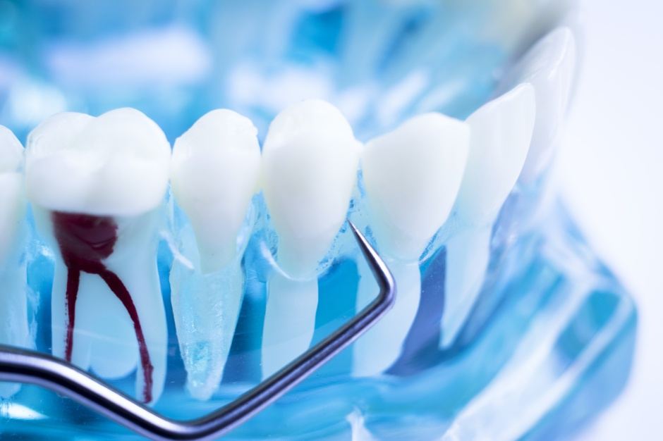 Root Canal Treatment in Glendora